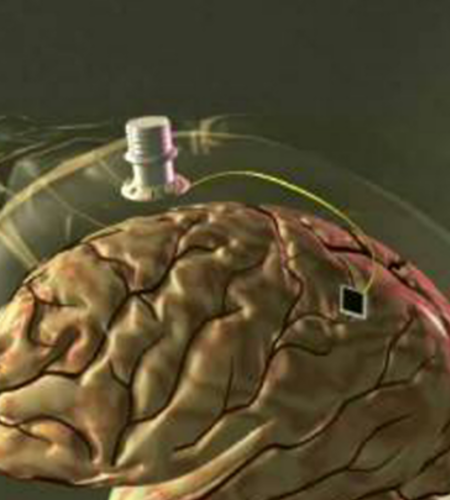 Vida Digital Implantes Cerebro